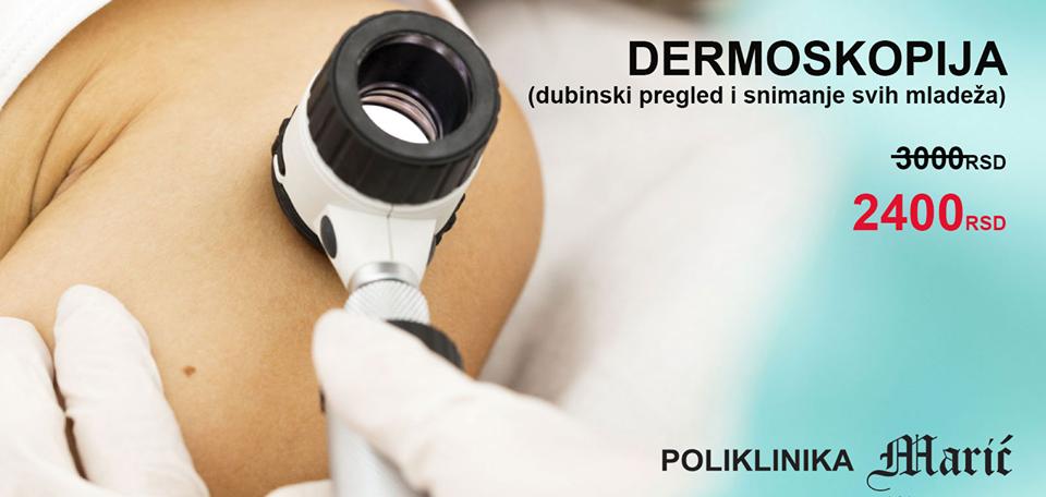 Dermoskopija POPUST 20% u Septembru