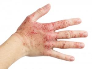 Alergijski kontaktni dermatitis
