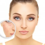 akne-dermatologija-laser