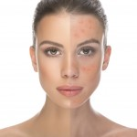 How-to-Get-Clear-Skin-Without-Imperfections-4